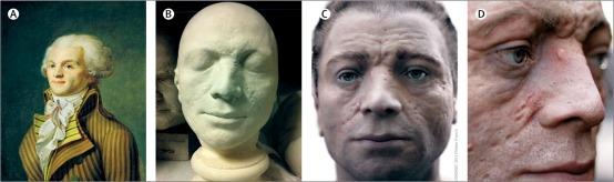 Masque mortuaire et reconstitution faciale
